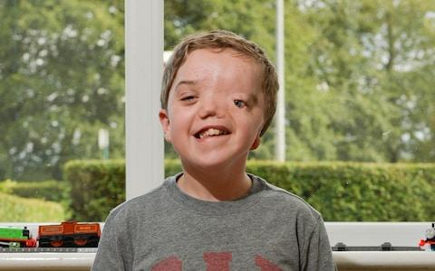 Harry was born with Goldenhar syndrome, which means he has no left eye, eye socket, nostril or left ear - Credit: SWNS.com
