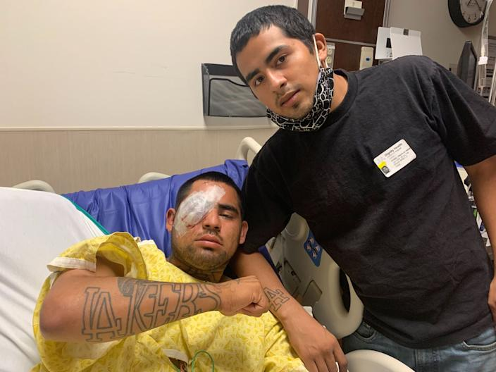 A man in a hospital bed with bandages over his right eye shows a Lakers tattoo on his forearm