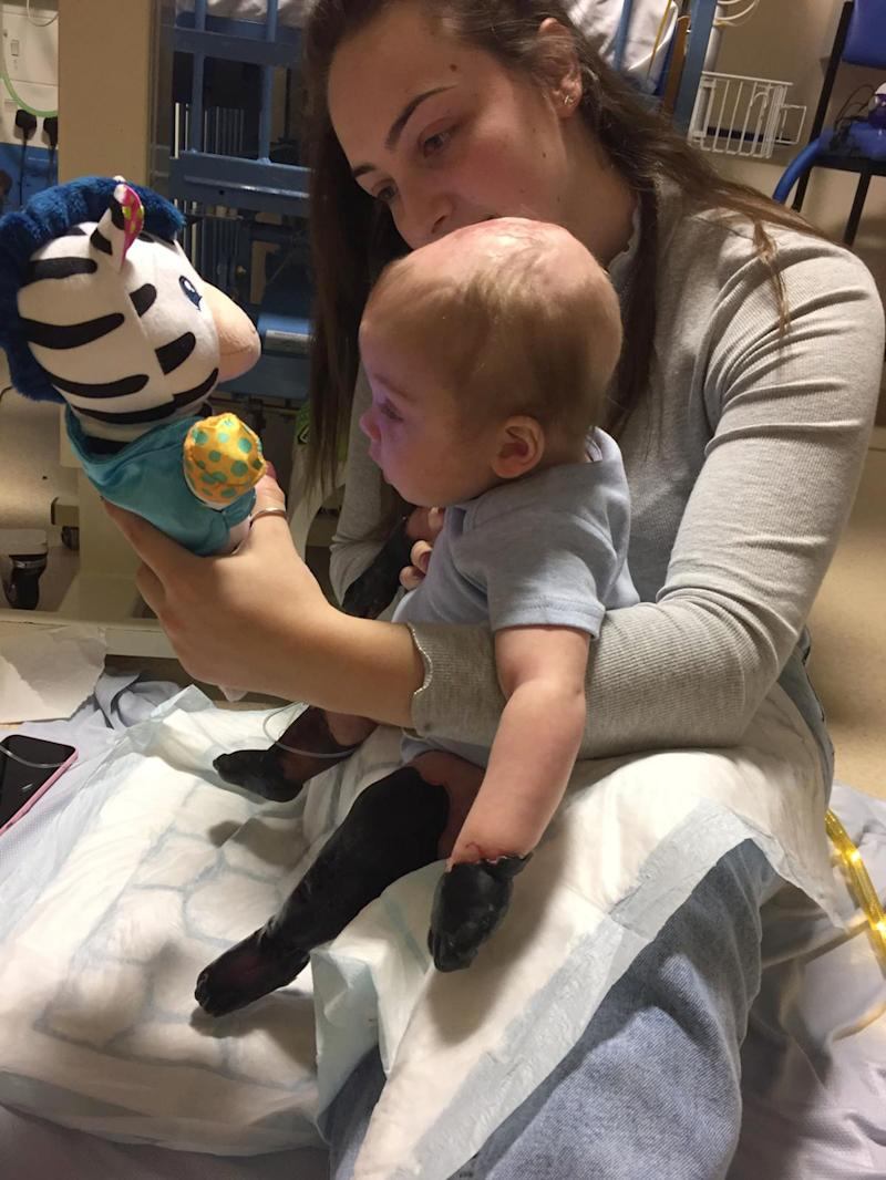 Oliver Aisthorpe with his limbs black before his amputation in hospital with his mum, Abigail Wardle.