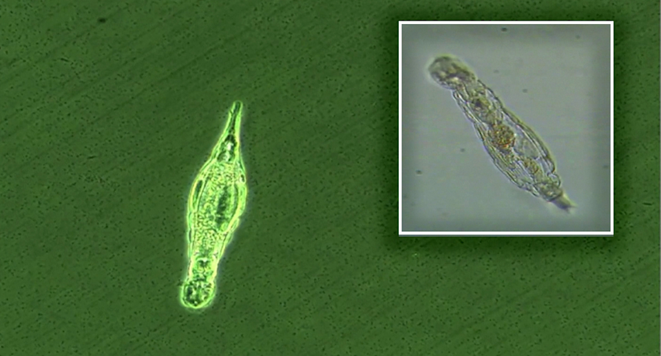 Bdelloid rotifer pictured under a microscope.