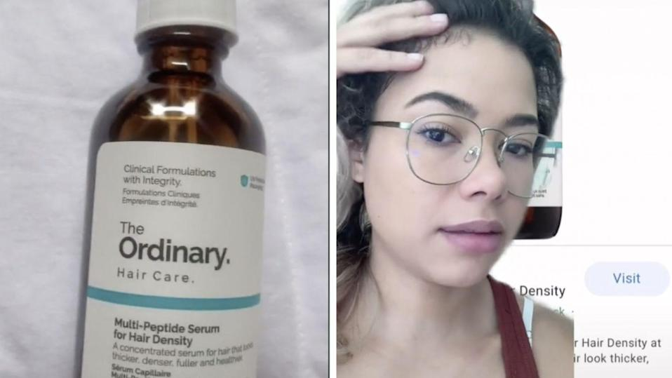 Tiktok Users Claim This Viral Product Is Making Their Hair Grow Like Crazy