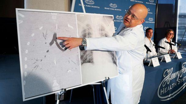 PHOTO: Dr. Hassan Nemeh, Surgical Director of Thoracic Organ Transplant, shows areas of a patient's lungs during a news conference at Henry Ford Hospital in Detroit, Nov. 12, 2019. (Paul Sancya/AP)