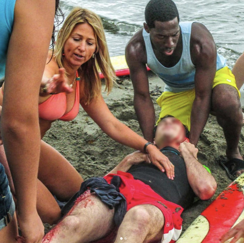 Pictured is Dr Candice Myhre wearing an orange bikini while helping a bleeding man on a beach.