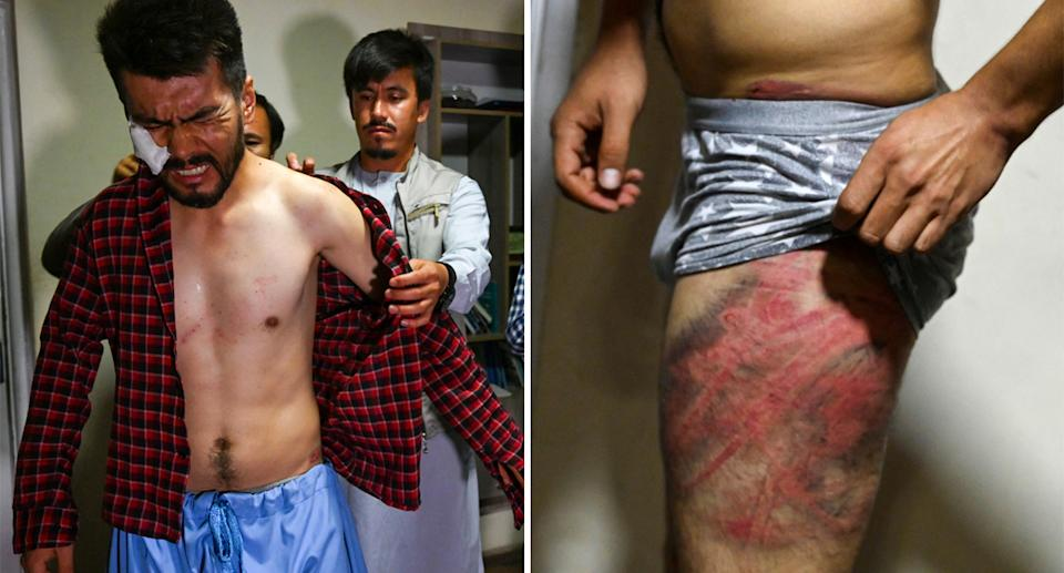 Afghan journalists have shown off ugly welts and bruises after being beaten and detained for hours by Taliban fighters. Source: AFP