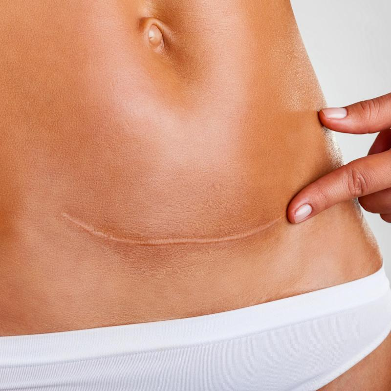 This Mom Embraced Her C-Section Scar and Stretch Marks in an Inspiring Instagram Post