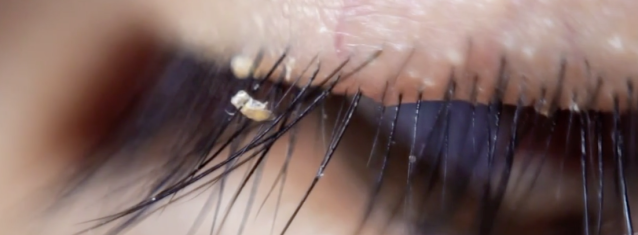 """Lash lice"" may multiply if extensions put people off cleaning their eyes. [Photo: abc7]"