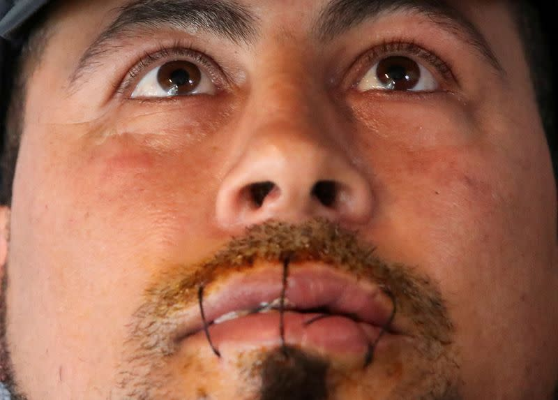 Hasni Abderrazzek, an asylum seeker, is seen with his lips sewed together in Brussels