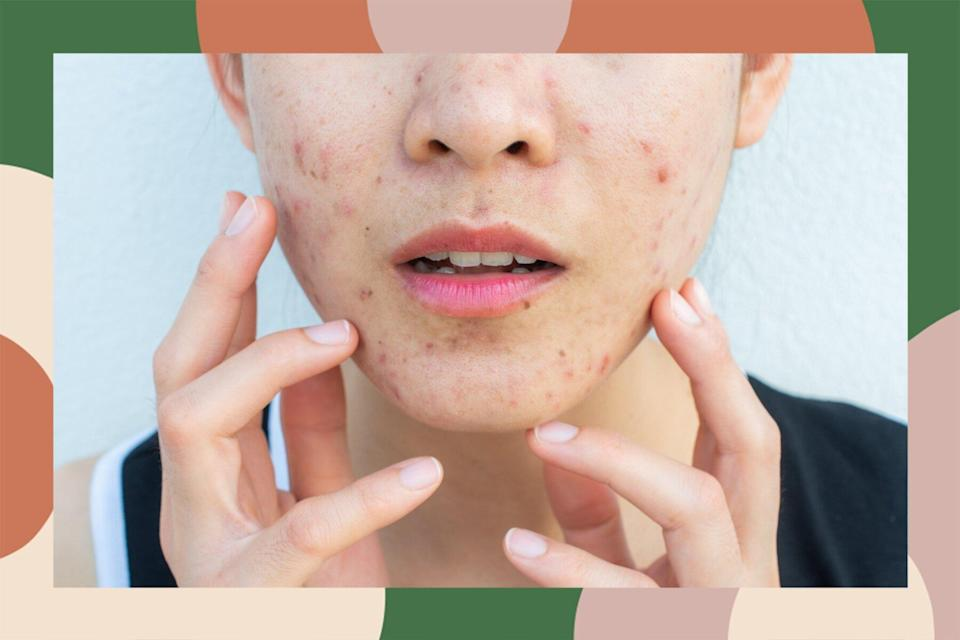 how to stop skin picking