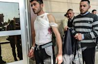 An injured Syrian man stands in front of Kilis hospital in south-central Turkey on February 15, 2016, arriving from northern Syria (AFP Photo/Bulent Kilic)