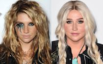 <p>Kesha is no stranger to having a little (or a lot of) fun with her makeup and hair looks, but there are many times when she'll just go for a pair of killer lashes and prairie braids — an everyday look that many people can appreciate. (Photo: Getty Images) </p>