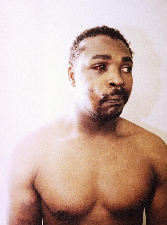 FILE - This file photo of Rodney King was taken three days after his videotaped beating in Los Angeles on March 6, 1991. The photo is one of three introduced into evidence by the prosecution in the trial of four LAPD officers in a Simi Valley, California Courtroom, March 24, 1992. The acquittal of four police officers in the videotaped beating of King sparked rioting that spread across the city and into neighboring suburbs. Cars were demolished and homes and businesses were burned. Before order was restored, 55 people were dead, 2,300 injured and more than 1,500 buildings were damaged or destroyed. (AP Photo/Pool,File)