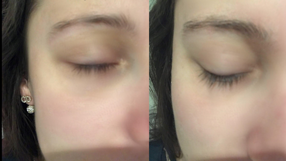 Before (left) and after using the Ecla Skin Care Organic Cold Pressed Castor Oil. Images courtesy of Amazon user Burn.