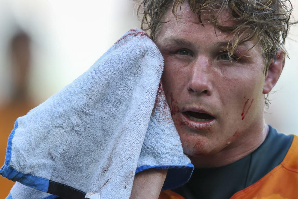Australia's captain Michael Hooper wipes blood from his face following the Rugby Championship game between the All Blacks and the Wallabies in Perth, Australia, Sunday, Sept. 5, 2021. (AP Photo/Gary Day)