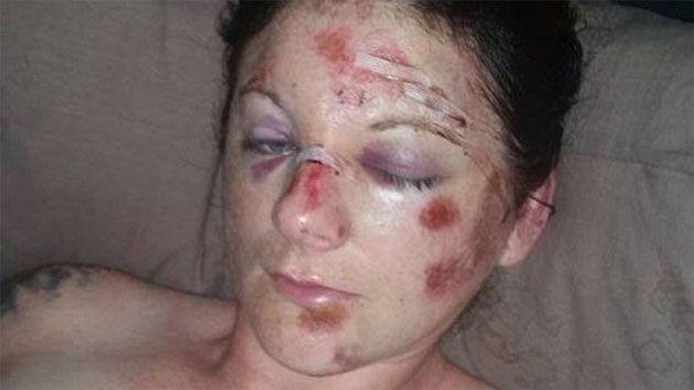 Elisha Sherwood says she was bashed by police for half an hour. Photo: Facebook