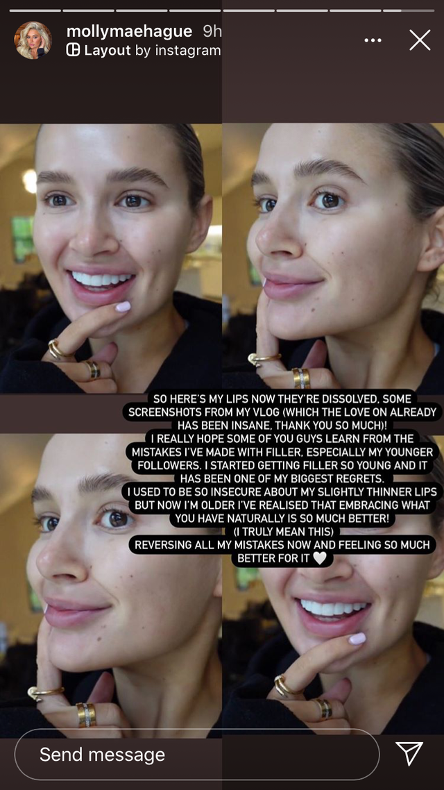 <p>Just this week, former Love Island contestant Molly-Mae has revealed that she's had her lip fillers dissolved. </p><p>Why? She opened up to fans in a candid Instagram story where she explained that the fillers were 'one of her biggest regrets'. </p><p>She's also been undergoing the removal of other facial fillers over the past few months.</p><p>She explained: 'These are my lips before, they have lumps in, bumps in, they are uneven. I reckon in total I probably have about 5ml of filler in these all together. I've not had them done for about a year now, maybe more actually. They haven't been done for a long time but still that filler is rock hard and thriving and needs to be gone.' </p><p>She continued: 'I really hope some of you guys learn from the mistakes I've made with filler, especially my younger followers. I started getting filler so young and it has been one of my biggest regrets. I used to be so insecure about my slightly thinner lips but now I'm older I've realised that embracing what you have naturally is so much better! (I truly mean this). Reversing all my mistakes and feeling so much better for it.'<br></p><p>Big kudos to Molly-Mae for doing what makes her happiest. </p>