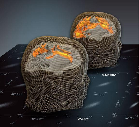 Brainwaves Reveal Your Past and Might Predict Your Future
