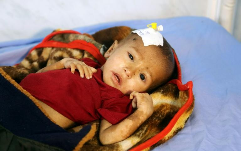 A malnourished Yemeni child receives treatment at a hospital in the Yemeni port city of Hodeidah on January 16, 2018