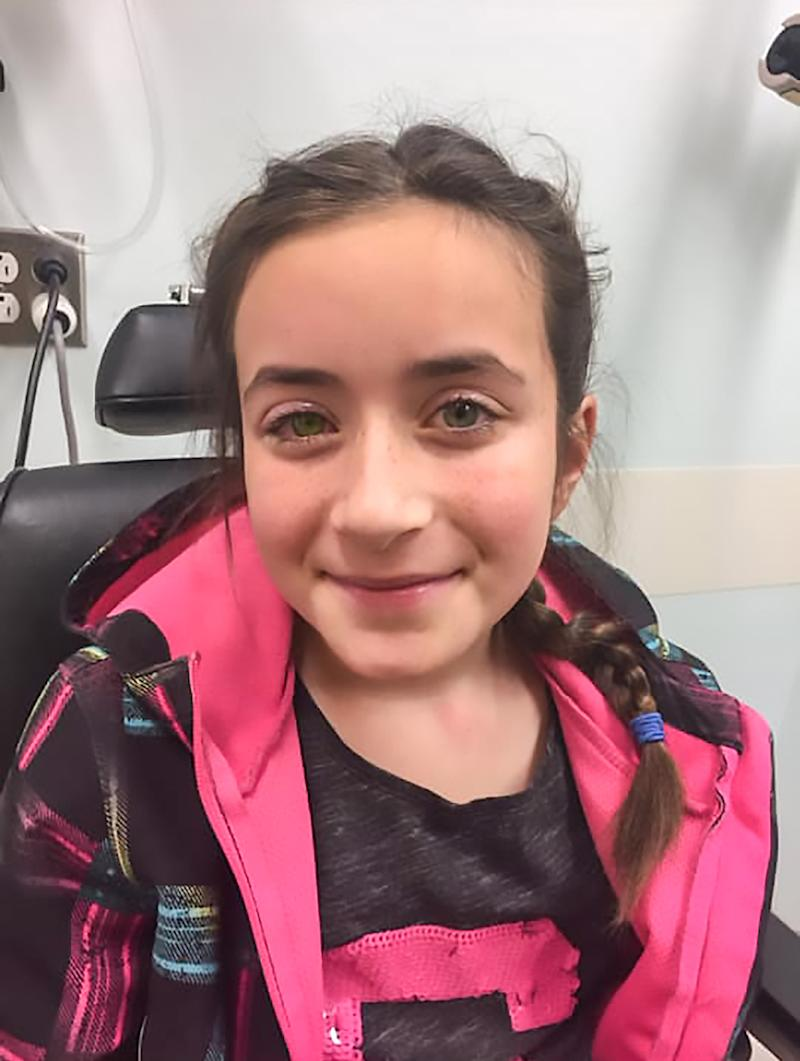 Emilie Turcotte, 11, wore contact lenses for Halloween