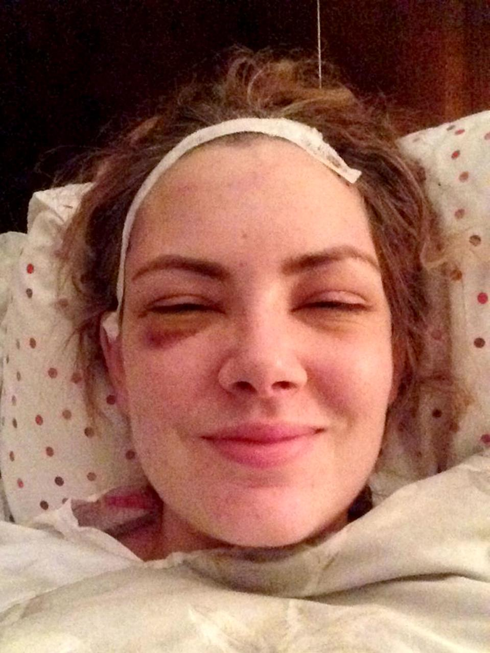 Doctors believe the brain tumour had been present since Emily was around 18 [Photo: Caters]