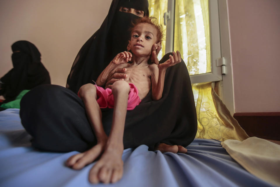 """FILE - In this Oct. 1, 2018, file photo, a woman holds a malnourished boy at the Aslam Health Center, in Hajjah, Yemen. A leading aid organization on Monday warned that U.S. Secretary of State Mike Pompeo's move to designate Yemen's Iran-backed Houthi rebels as a """"foreign terrorist organization"""" would deal another """"devastating blow"""" to the impoverished and war-torn nation. (AP Photo/Hani Mohammed, File)"""