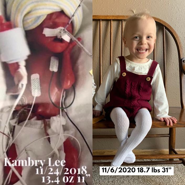 Kambry Ewoldt, of Dysart, weighed just 13.4 ounces when she was born on Nov. 24, 2018. At right she's shown about three weeks before her second birthday.