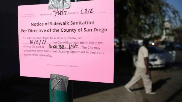 PHOTO: A man passes behind a sign warning of an upcoming street cleaning to address a hepatitis A outbreak in San Diego, Sept. 28, 2017. (Gregory Bull/AP/FILE)