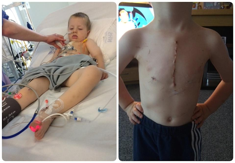 Jordy Gordon's lung collapsed after he unknowingly inhaled a popcorn kernel. (Shona Macgillivray/SWNS)