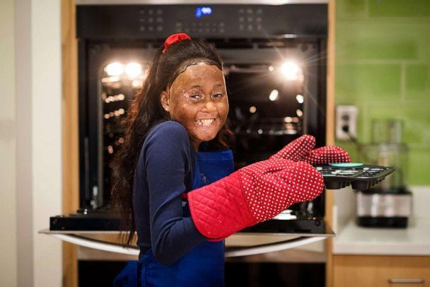 PHOTO: Ariana was born with sickle cell disease and wants to be a chef when she grows up. (Ashley Berrie Photography)
