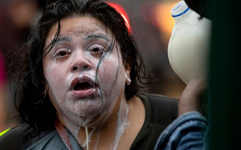 A protester uses milk to treat the sting of tear gas after police tried to disperse demonstrators in Minneapolis - Carlos Gonzalez/Star Tribune/AP