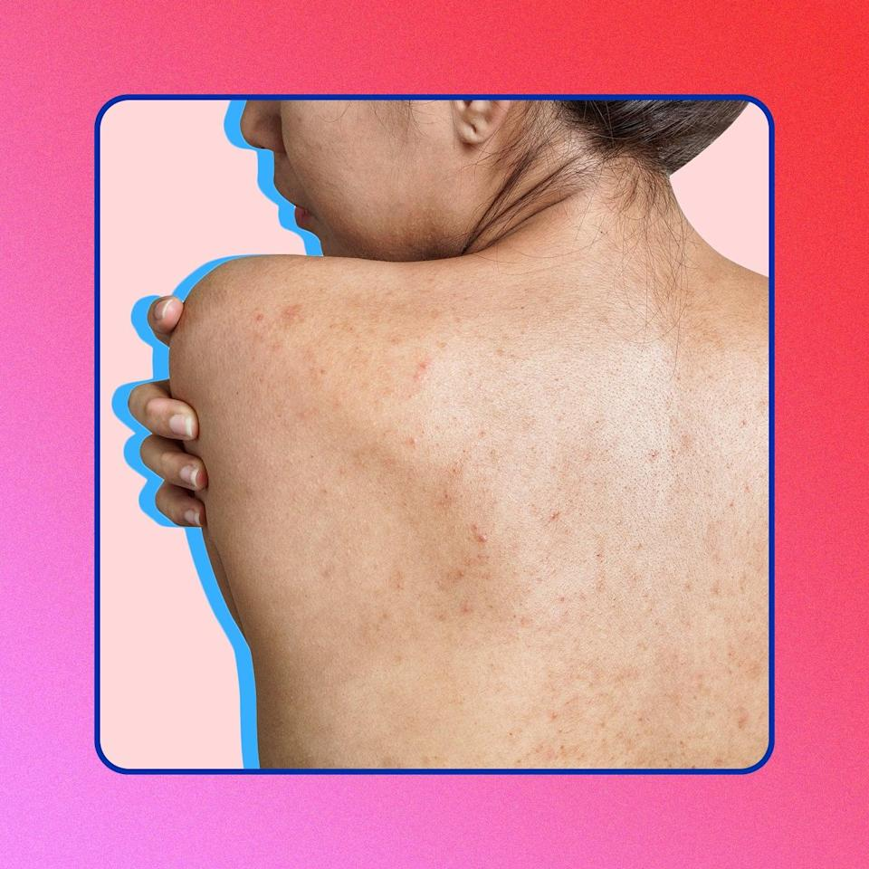 How to Get Rid of Acne Scars and Marks, According to Dermatologists