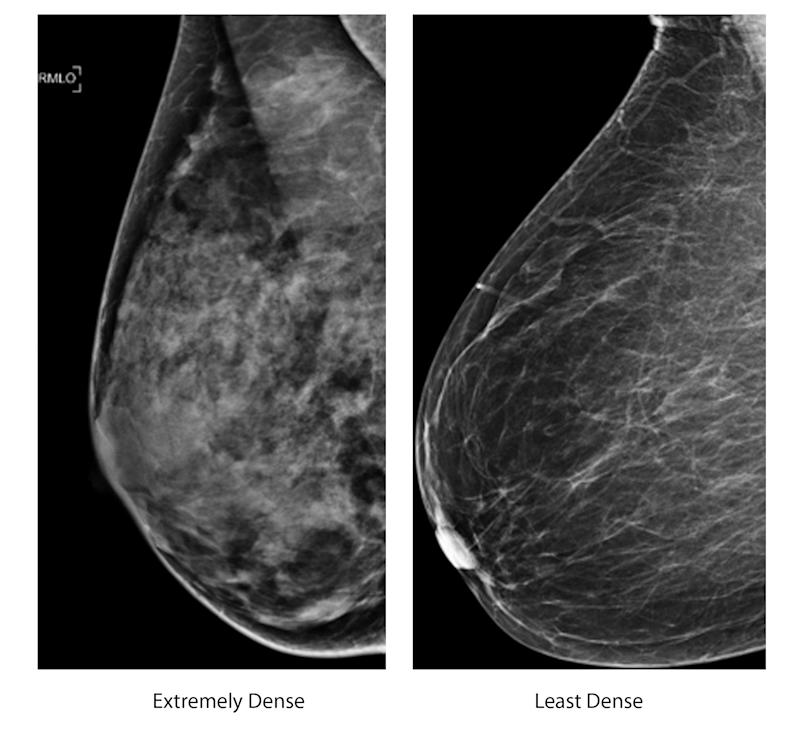 These two undated photos, provided by the American College of Radiology shows an extremely dense breast, left, and a least dense breast. Women whose breast tissue is very dense have a  greater risk of developing breast cancer than women whose breasts contain more fatty tissue. And it can be harder for mammograms to spot a possible tumor because both dense tissue and potentially cancerous spots appear white on the X-ray. This image compares mammograms of an extremely dense breast and an extremely fatty breast. According to the American College of Radiology, most women fall somewhere in between. (AP Photo/American College of Radiology)