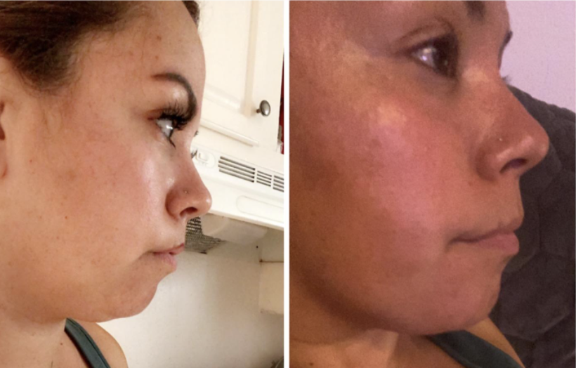 "This Amazon customer saw ""a dramatic change in my saggy chin and I'm loving it"" after using Maryann Organics Neck Firming Cream for just three days.  (Photo: Amazon)"