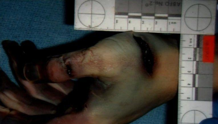 The prosecution contends this photo, shown in court on Jan. 8, 2013, shows Travis Alexander had multiple self-defense wounds to his palms and fingers that indicate he had fought for his life during the knife attack.
