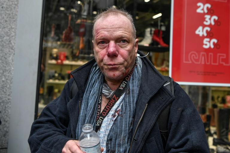 Foreign press correspondent Thomas Jacobi was left with facial bleeding after being attacked at a far-right rally in Athens (AFP Photo/LOUISA GOULIAMAKI)
