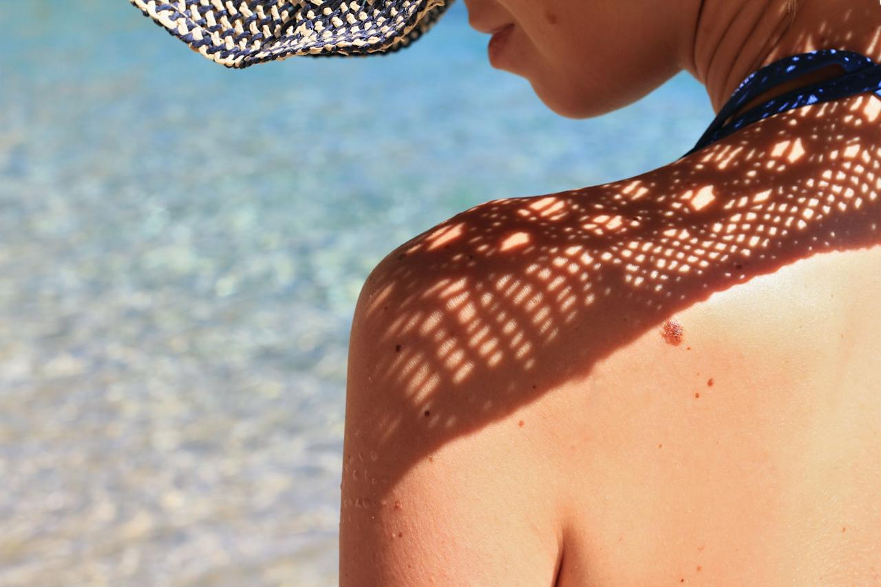 """<p>If there's <em>one</em> good thing about <a href=""""https://www.prevention.com/health/health-conditions/a20889128/skin-cancer-facts/"""" target=""""_blank"""">skin cancer</a>, it's that you can spot it yourself—if you know what to look for. And the earlier you find the <a href=""""https://www.prevention.com/health/g20508591/skin-cancer-signs-that-arent-moles/"""" target=""""_blank"""">signs of skin cancer</a>, the sooner you can seek treatment. That's incredibly important: Skin cancer is the most common cancer in the United States, with more cases diagnosed every year than all other cancers <em>combined</em>.</p><p>You already know that spending too much time in the sun without applying <a href=""""https://www.prevention.com/beauty/skin-care/g20174383/best-sunscreens/"""" target=""""_blank"""">sunscreen</a> can boost your chances of skin cancer—but there are tons of other <a href=""""https://www.prevention.com/health/health-conditions/a19694832/skin-cancer-causes/"""" target=""""_blank"""">risk factors</a> to keep on your radar, too. Getting just one bad <a href=""""https://www.prevention.com/beauty/a20513758/natural-sunburn-cures/"""" target=""""_blank"""">sunburn</a>, having fair skin or red hair, living at high elevations, flying frequently or driving a lot, exposure to certain chemicals, and having a family history of skin cancer can all spike your risk of the disease.<br><br>That's why it's so important to be vigilant, as skin cancer is very treatable if you catch it early. """"The bottom line is if your skin starts forming a spot that doesn't look like anything else and it's not getting better, it's growing, or it's acting differently than your other moles, get it checked out,"""" says <a href=""""https://faculty.mdanderson.org/profiles/saira_george.html"""" target=""""_blank"""">Saira J. George, MD</a>, assistant professor of dermatology at The University of Texas MD Anderson Cancer Center.<br><br>The <a href=""""https://www.skincancer.org/skin-cancer-information/early-detection"""" target=""""_blank"""">Skin Cancer Foundation</a> recommends d"""