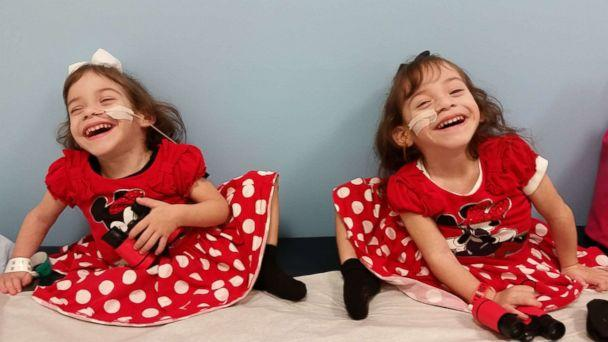 Formerly conjoined twins Eva and Erika Sandoval are seen here after their separation surgery. (Courtesy Sandoval Family)