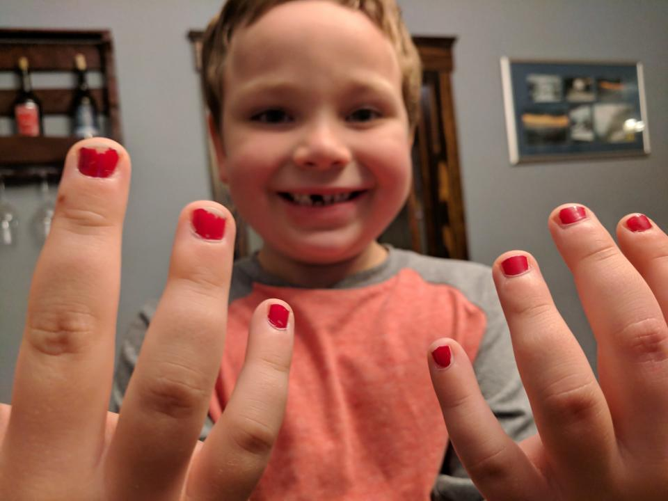 Five-year-old Sam was bullied for wearing nail polish to school, and his dad is speaking out about it. (Photo: Aaron Gouveia)