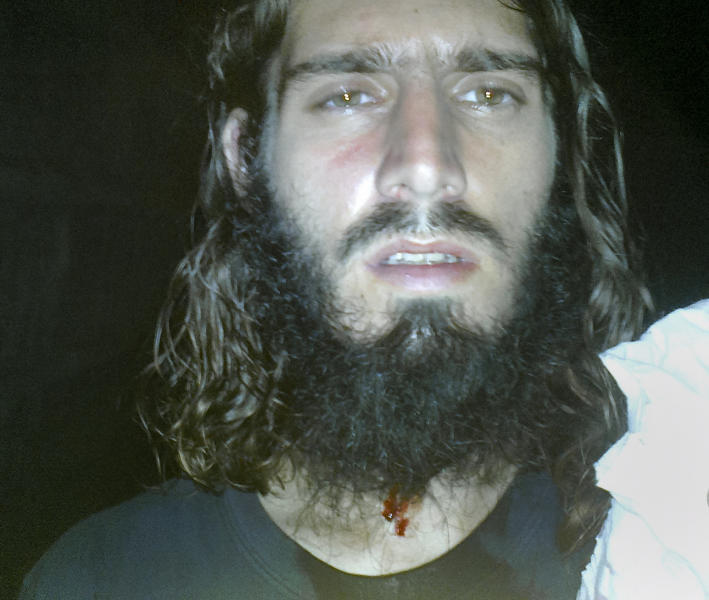 This undated photo downloaded from a file-sharing site linked from the Twitter account of Omar Hammami, a most-wanted American jihadi in Somalia, purports to show Hammami with blood on his neck and shirt Thursday, April 26, 2013 following what he labeled an assassination attempt late Thursday as he was sitting in a tea shop. Hammami tweeted Friday that al-Shabab's leader, with whom he has had a public feud since last year, was sending forces against him. (AP Photo/Internet) NOTE: THE ASSOCIATED PRESS IS UNABLE TO INDEPENDENTLY VERIFY THE CONTENT OF THIS IMAGE