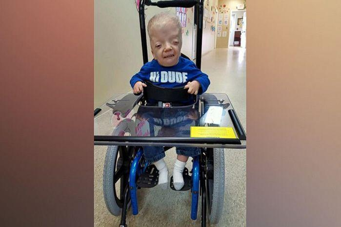 Little Grayson surpassed the short life expectancy doctors gave him at birth, but his parents said they spend every day like it could be his last. Source: Facebook