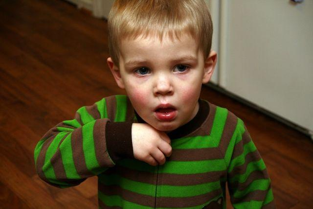 4 Homeopathic Remedies For Treating Different Types Of Asthma In Children