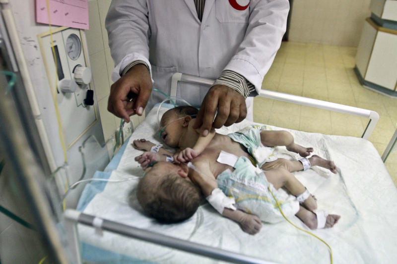 A doctor treats conjoined Palestinian female twins at a hospital in the West Bank city of Hebron, Monday, June 3, 2013. Conjoined Palestinian twins with a shared heart and other vital organs returned home to the West Bank Monday after Israeli doctors determined they could not successfully separate them. (AP Photo/Nasser Shiyoukhi)