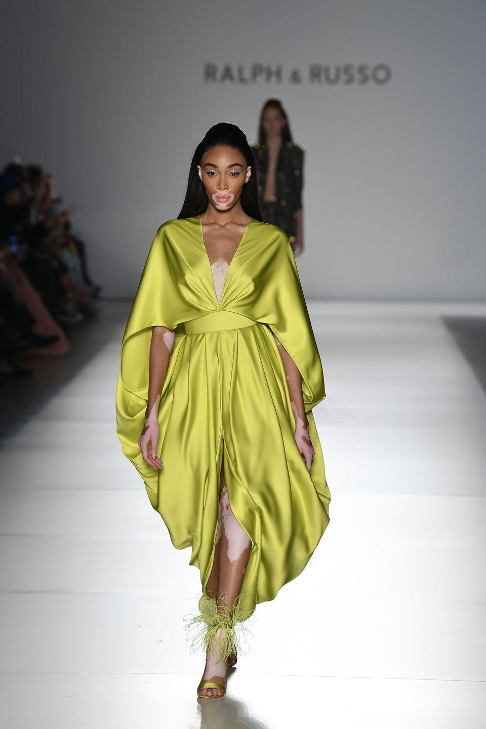 "<p>Winnie Harlow was a contestant on <em>America's Next Top Model</em> back in 2014, and although she didn't win that cycle, her modeling career has exploded. In <a href=""https://www.youtube.com/watch?v=LSbJYv0qMgc"" rel=""nofollow noopener"" target=""_blank"" data-ylk=""slk:her audition"" class=""link rapid-noclick-resp"">her audition</a>, she said she was bullied in school for her vitiligo, but she has been at the forefront of changing the beauty standards of the modeling industry. </p>"