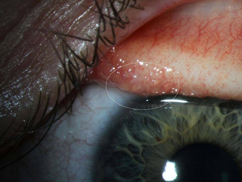 An image released by the CDC shows Ms Beckley's infected eye. The flies feed on the tears that lubricate the eyeball, scientists said (CDC)