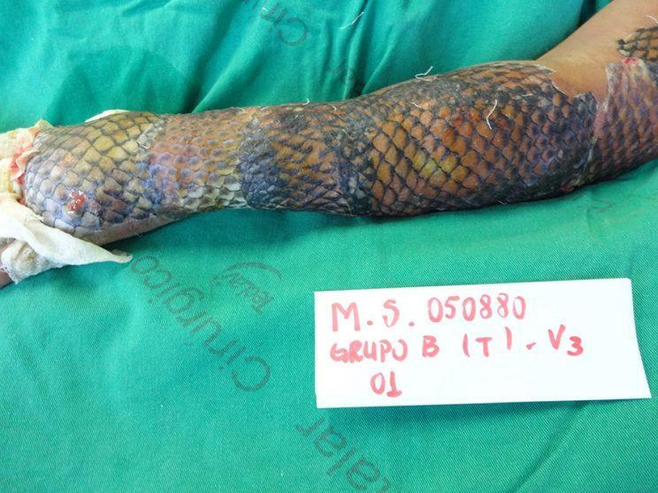 Maria Ines burn wounds were treated with the skin from Tilapia fish. (Photo: Caters News)