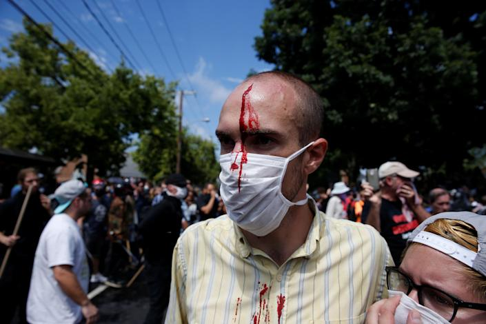 A man is seen with an injury during a clash between white nationalists and counter-protesters.