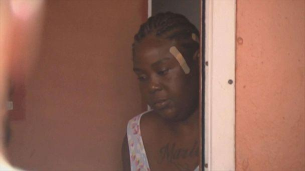 PHOTO: Shakena Jefferson, victim of drive-by shooting on Feb. 11, 2020, in Miami, is seen at her home after being discharged from a hospital what doctors initially told her was a graze wound. (WPLG)
