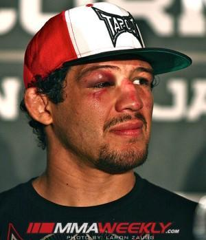 Gilbert Melendez is Right Back in the Mix for a Shot at the UFC Lightweight Title