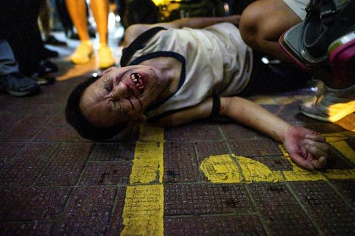 An unidentified man reacts after being beaten by a group of people following a protest in Hong Kong's Causeway Bay district -- multiple brawls broke out between political opponents (AFP Photo/Philip FONG)
