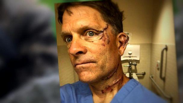 PHOTO: Colorado man speaks out about fighting off bear (Courtesy Dave Chernosky)