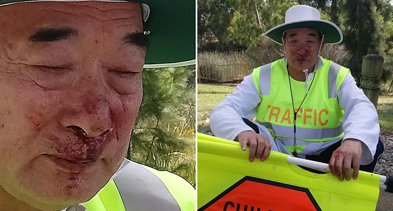 A 72-year-old traffic warden with a bloodied face.